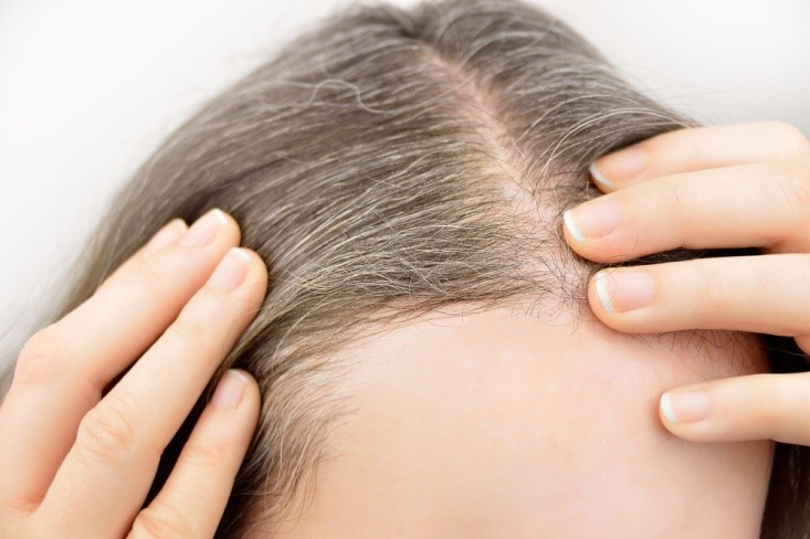Home remedies to prevent graying of hair