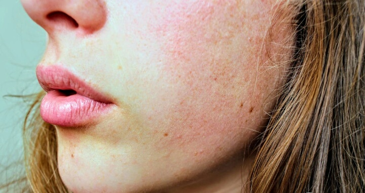 how to get rid of dry skin home remedies