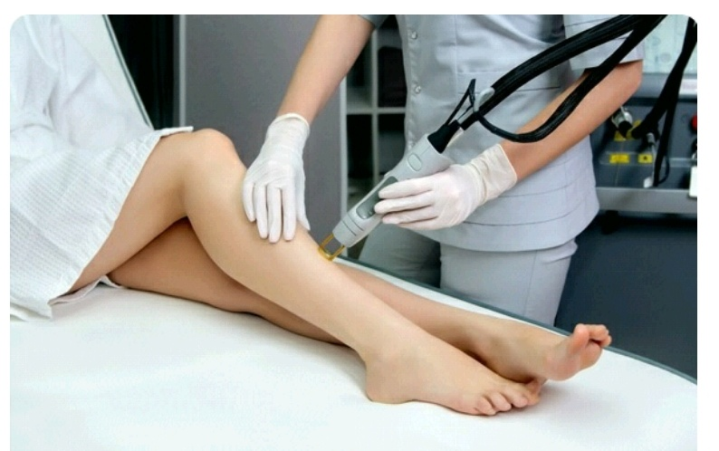 Brazilian Laser Hair Removal