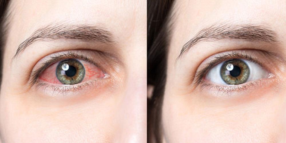 gulab jal for eyes
